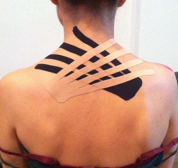 Akupunktur Kristina Rummelsburg Berlin
